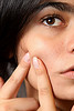 Stress is a known acne cause.  Discover homemade skin care tips to reveal a natural skin glow!