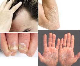 Psoriasis is a chronic skin problem.  Discover psoriasis causes.  There are various ways of treating psoriasis.